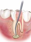 Endodonzia1-271x300