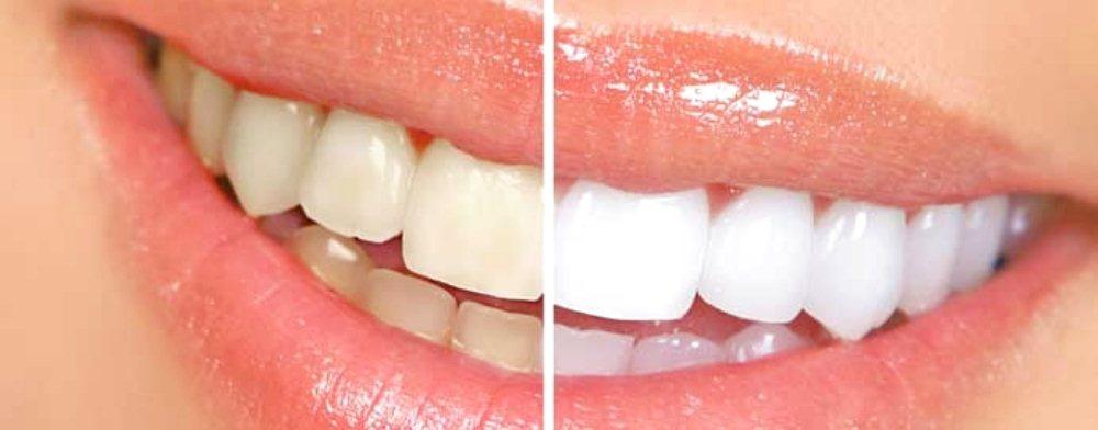 sbiancamento professionale denti