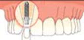 Sostituzione dente singolo