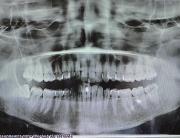 rx endorale denti del giudizio