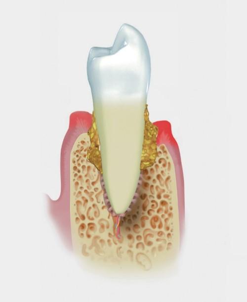 parodontite intensa-straumann