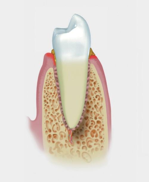 parodontite lieve-straumann