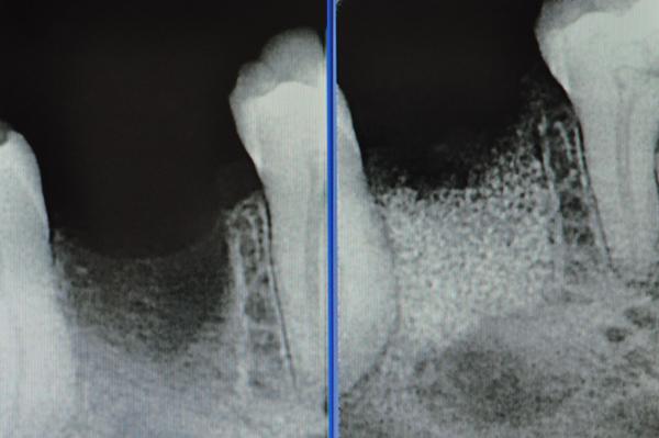 rx rigenerazione ossea pre e post intervento