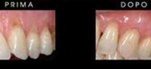 prima-e-dopo parodontite